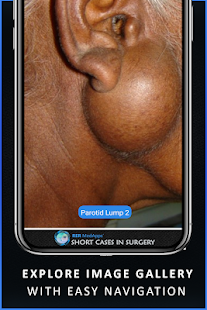 Short Cases in Surgery - OSCE for Medical Doctors